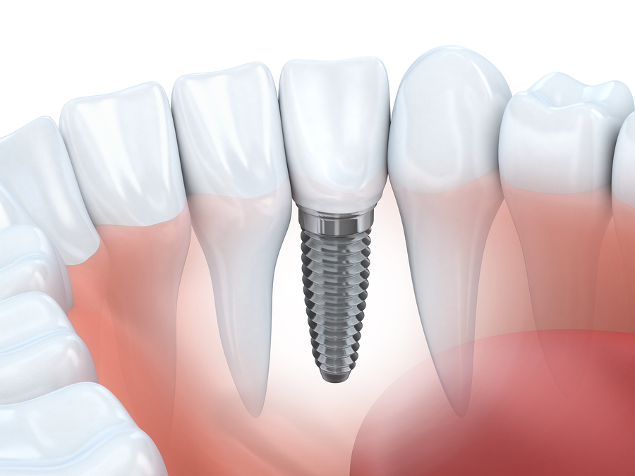 dental implants hudson